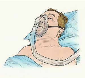 What-Is-Obstructive-Sleep-Apnea-Syndrome[1]